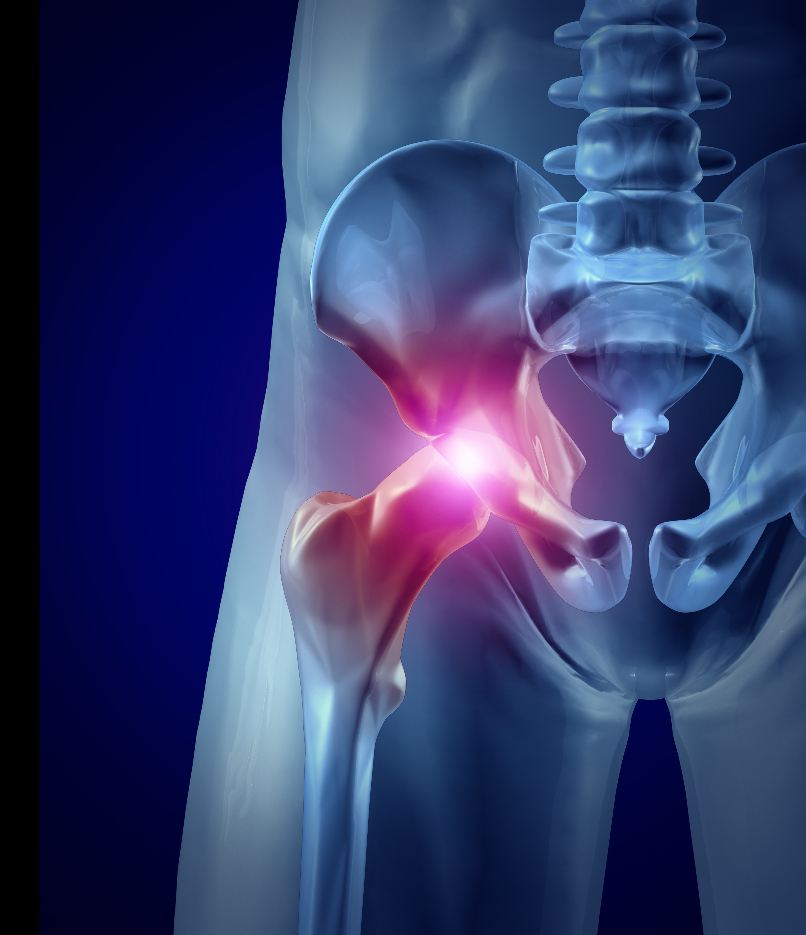hip arthritis Dr. Wolff