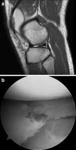 Picture of MRI comparison for the evaluation of meniscal tears, a study by Dr. Andrew Wolff and colleagues.