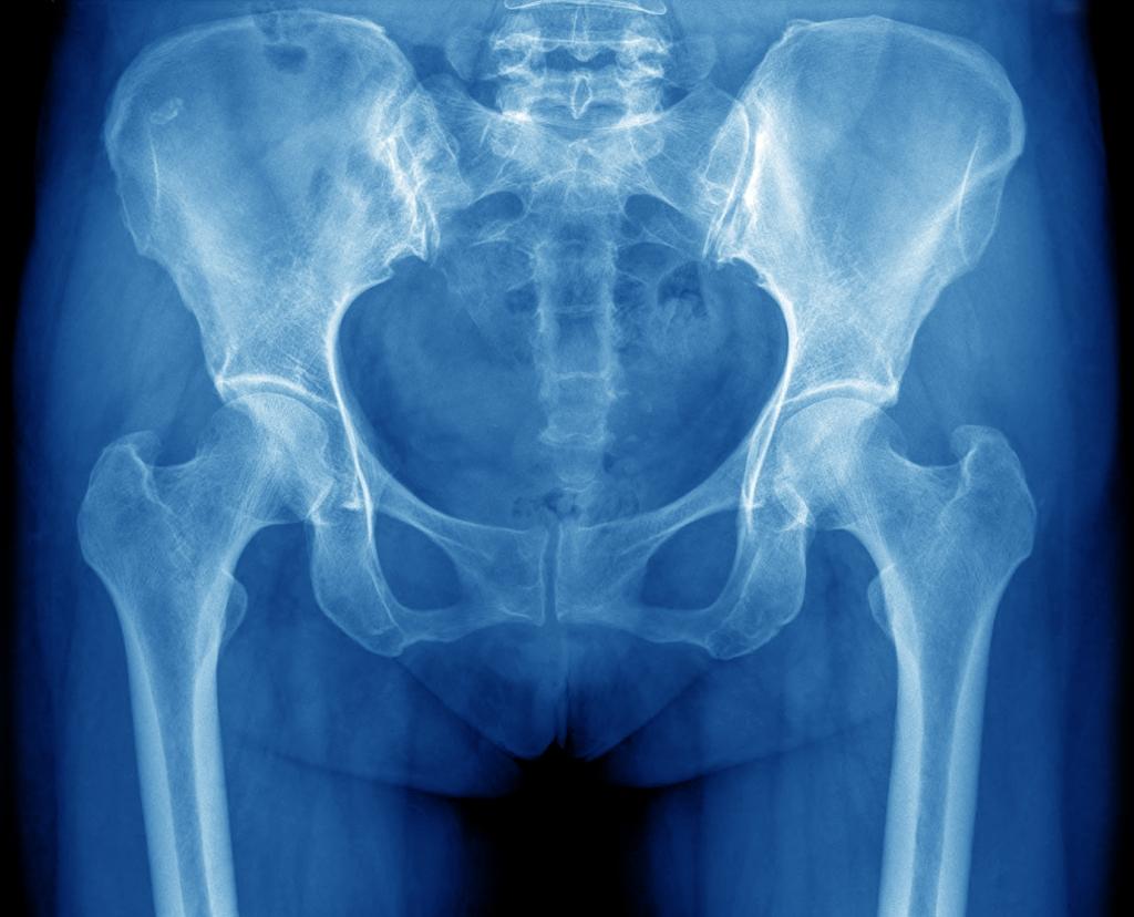 Hip X-ray